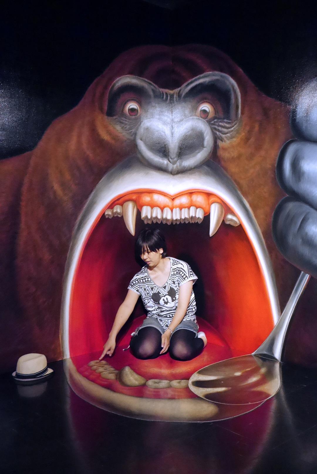 10_ここ虫歯