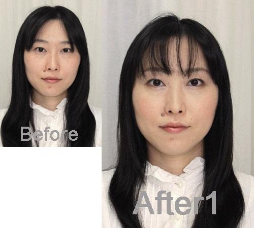wikkasan-before-after1