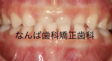 20140506-1