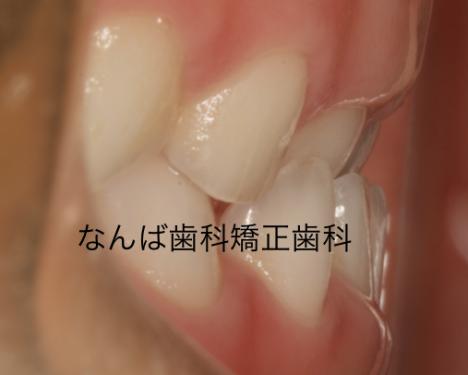 20140506-2