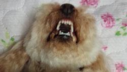 奥歯の歯石