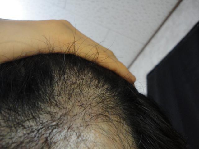 術後4か月M字左