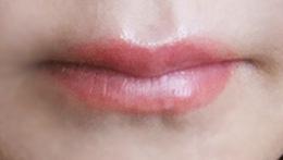 Lip_MN_2_0.jpg